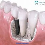 Best San Diego Dental Implant Center That Offer Best Treatment With Free Consultation