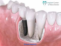 Dental Implants San Diego Offers Affordable As Well Quality Dental Implants