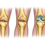 Signs and Symptoms That reflect a Need For the Knee Replacement Surgery